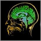 scanner-cerveau
